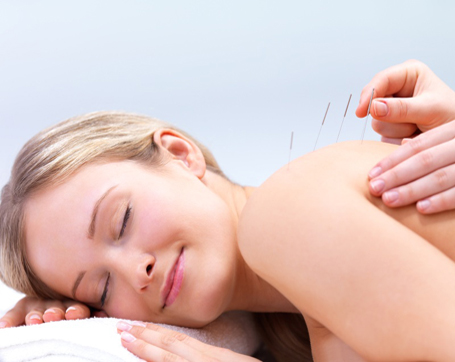 Acupuncture At Physionow